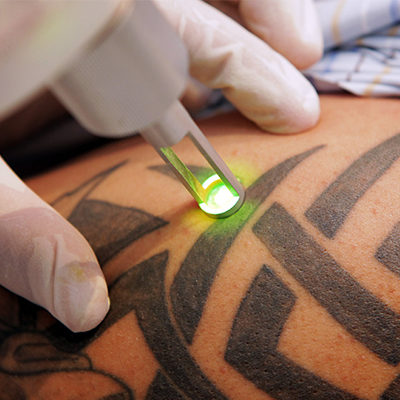 Laser Tattoo Removal Aesthetox