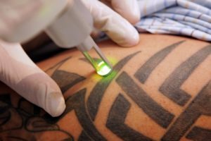 laser tattoo removal Aesthetox Glasgow