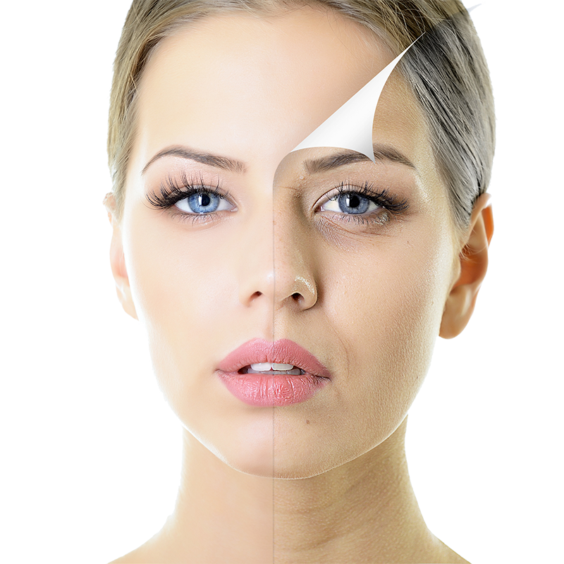 Chemical Peel Aesthetox Glasgow